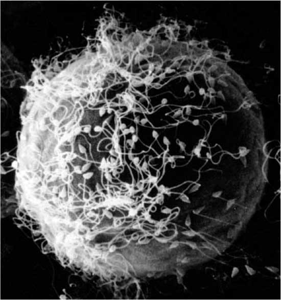 Eggcelle omgitt av sædceller