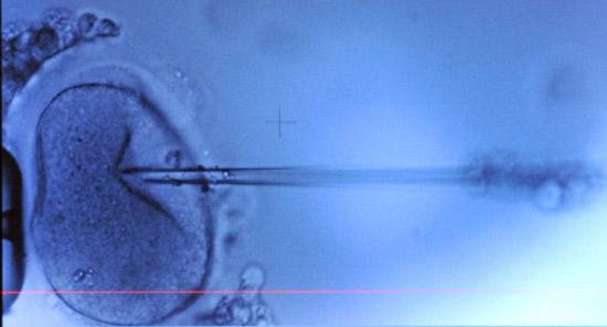 arvestoffet dna er oppkveilet i cellekjernens