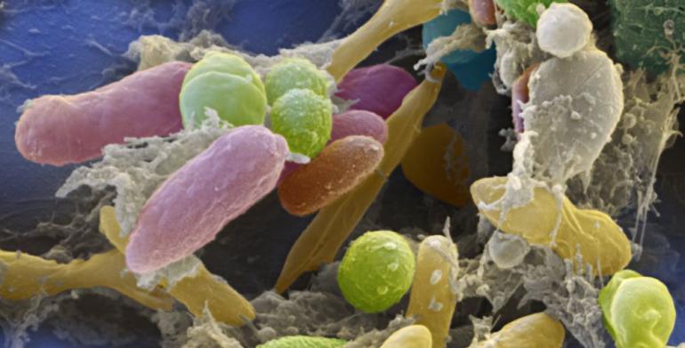 Tarmbakterier av flere forskjellige typer.