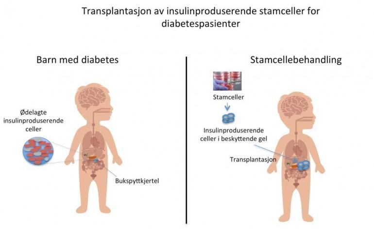 Diabetes-figur_web