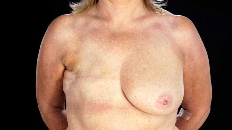 Bilde av kvinne som har fjernet et gen