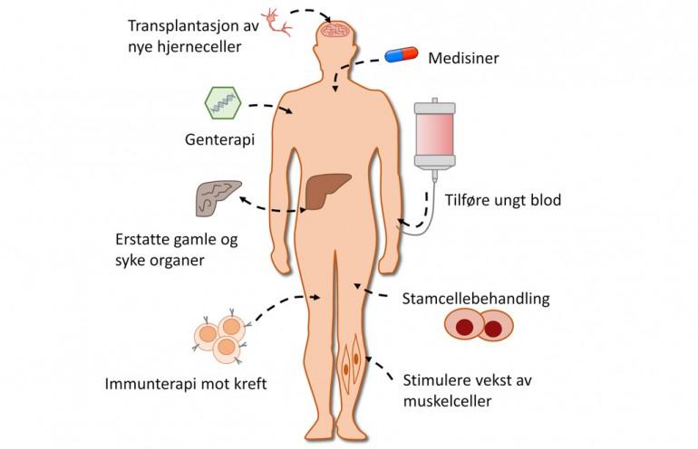 Figur som viser ulike typer antialdrings-behandlinger