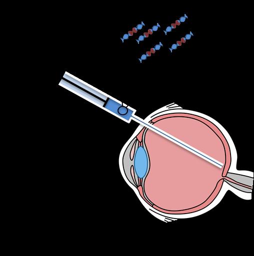 Illustrasjon øyeterapi.