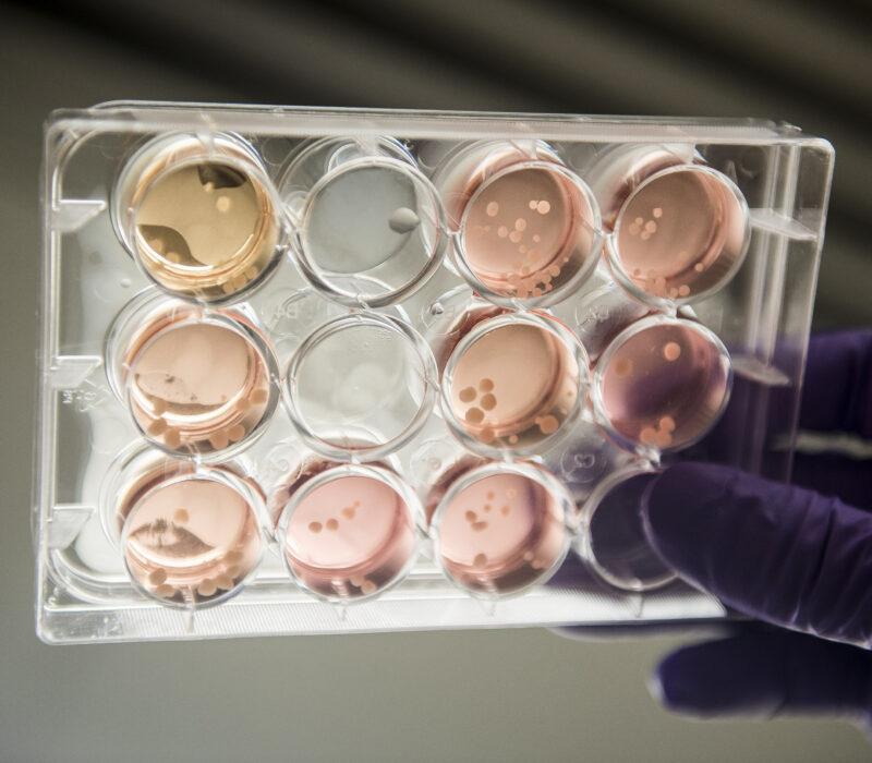 I GENialt: Minihjerner med hjernebølger skaper debatt